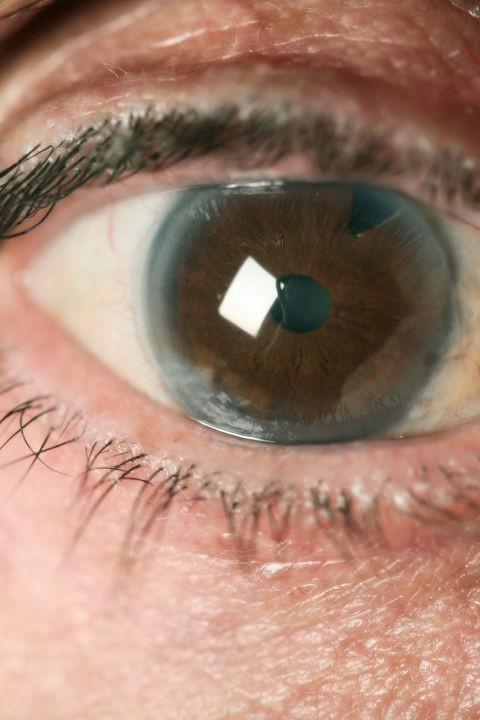 Bác sĩ nhãn khoa chỉ ra những bệnh có thể nhận biết qua đôi mắt của bạn - Ảnh 4.