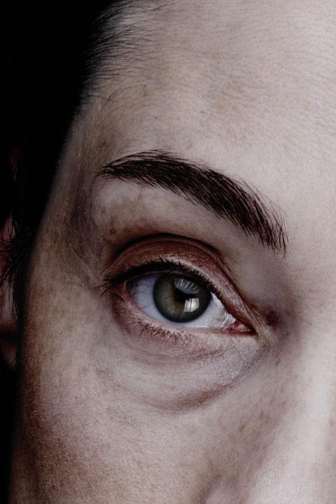 Bác sĩ nhãn khoa chỉ ra những bệnh có thể nhận biết qua đôi mắt của bạn - Ảnh 8.