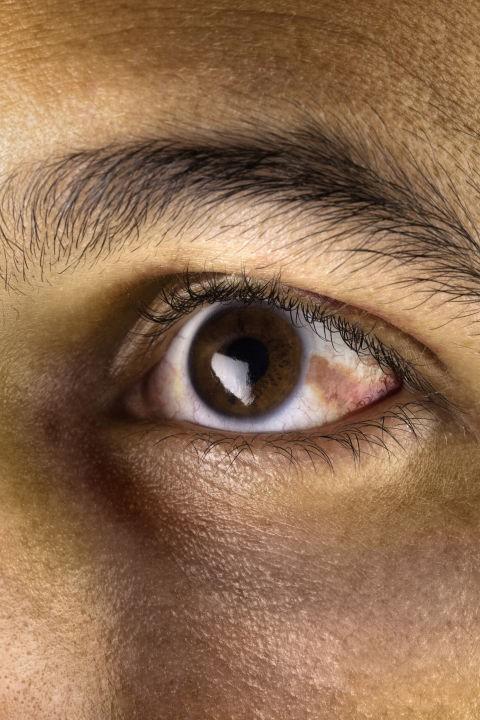 Bác sĩ nhãn khoa chỉ ra những bệnh có thể nhận biết qua đôi mắt của bạn - Ảnh 9.