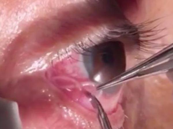 Phát hoảng khi kéo sinh vật dài 15cm ra khỏi mắt người đàn ông, bác sĩ cảnh báo căn bệnh tưởng chừng lãng quên - Ảnh 1.