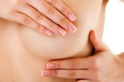 Bác sĩ bệnh viện Từ Dũ chỉ 7 dấu hiệu nếu có cần đi khám ung thư vú ngay - Ảnh 2.