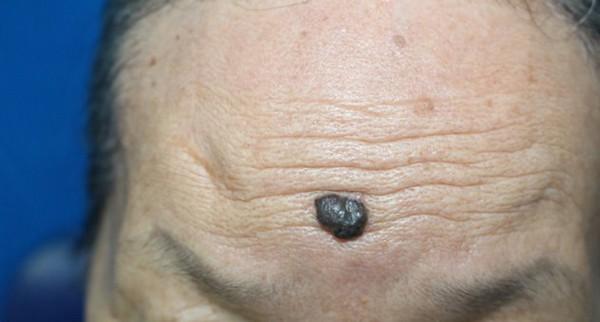 Ung thư từ nốt ruồi rất nguy hiểm, di căn nhanh: Những dấu hiệu của nốt ruồi cần cảnh giác - Ảnh 1.