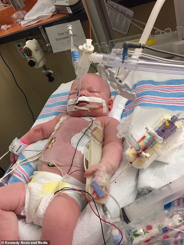 Nhận nụ hôn từ người tới thăm, bé sơ sinh chỉ sống sót được vài ngày vì nhiễm virus ăn não và phổi - Ảnh 1.