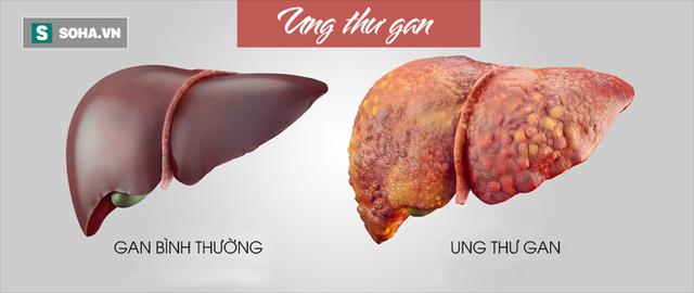 GS ung bướu BV Bạch Mai chỉ ra những bệnh ung thư có nhiều người mắc nhất ở Việt Nam - Ảnh 1.