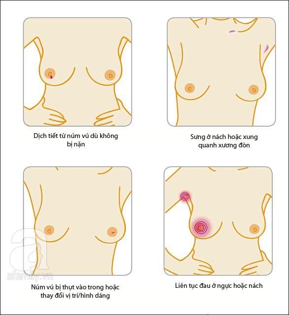 Dù ngực không có khối u nhưng nếu thấy có biểu hiện như trong bức tranh này thì bạn nên đi khám ung thư vú ngay kẻo muộn - Ảnh 5.