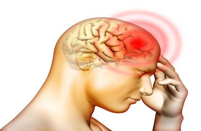 Người đàn ông bị xuất huyết não suýt mất mạng chỉ vì chủ quan nghĩ rằng cơn đau đầu mình gặp là do cảm lạnh - Ảnh 1.