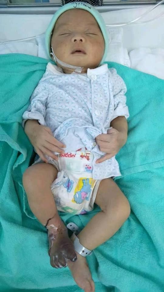 Chào đời hoàn toàn khỏe mạnh, nhưng sau khi lấy máu xét nghiệm, bàn chân bé sơ sinh bỗng thâm đen đến đáng sợ - Ảnh 6.