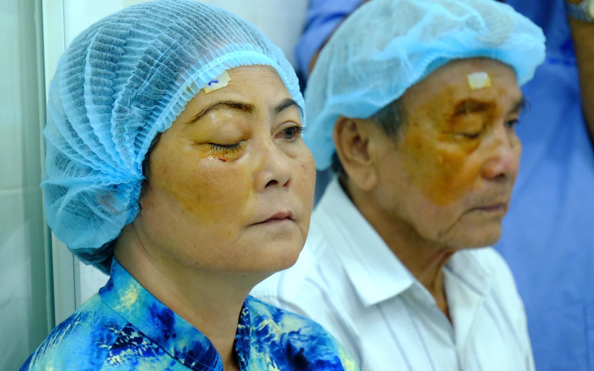 """Mắt xuất hiện """"màng máu"""": Không ít người Việt mắc căn bệnh này dẫn đến nguy cơ biến dạng tròng đen và giảm thị lực"""
