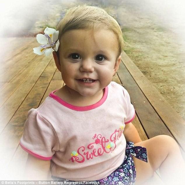 Tỉnh dậy trong vũng máu, bé 1 tuổi được chẩn đoán nhiễm trùng đường tiết niệu nhưng chụp X-quang thì mới biết nguyên nhân - Ảnh 1.