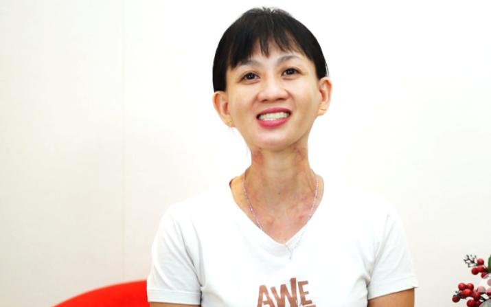 """Người phụ nữ sống sót sau 21 năm chống chọi ung thư cổ họng và """"cơn ác mộng"""" thực sự của đời mình"""