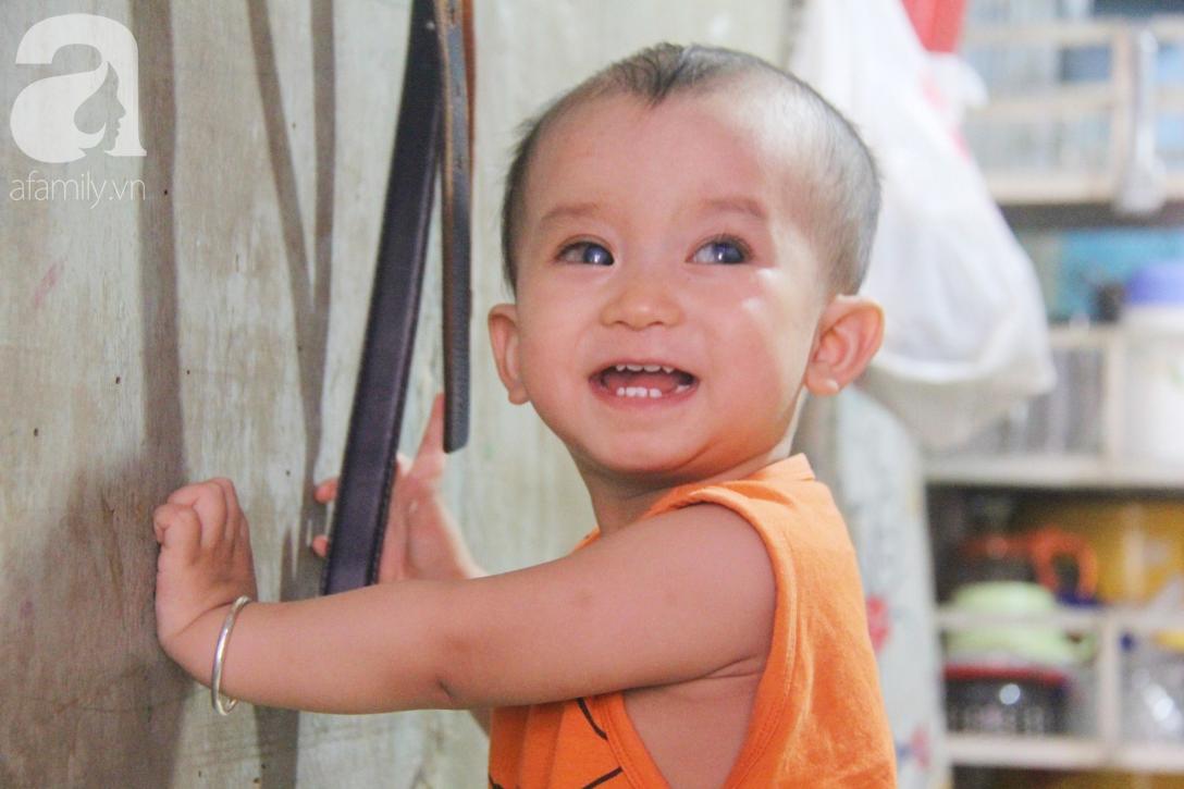 Điều kỳ diệu đến với Gia Anh, bé trai 14 tháng tuổi có đôi mắt màu xanh đi tìm ánh sáng - Ảnh 1.