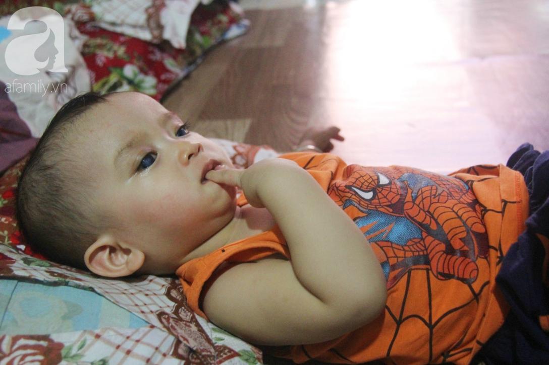Điều kỳ diệu đến với Gia Anh, bé trai 14 tháng tuổi có đôi mắt màu xanh đi tìm ánh sáng - Ảnh 5.