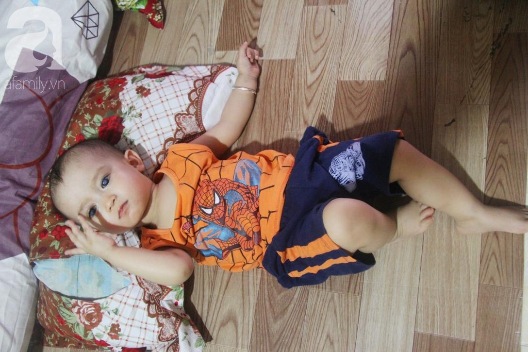Điều kỳ diệu đến với Gia Anh, bé trai 14 tháng tuổi có đôi mắt màu xanh đi tìm ánh sáng - Ảnh 11.