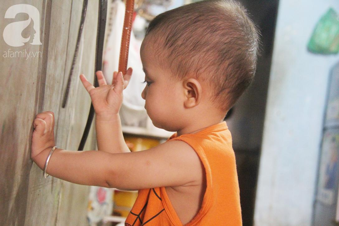 Điều kỳ diệu đến với Gia Anh, bé trai 14 tháng tuổi có đôi mắt màu xanh đi tìm ánh sáng - Ảnh 4.
