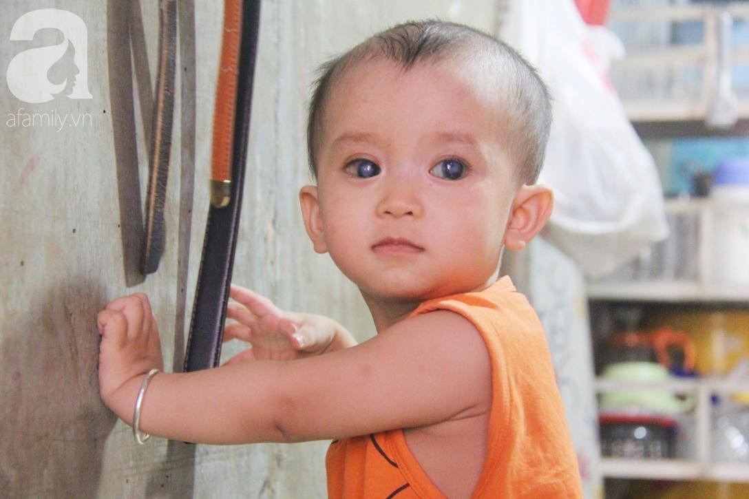 Điều kỳ diệu đến với Gia Anh, bé trai 14 tháng tuổi có đôi mắt màu xanh đi tìm ánh sáng - Ảnh 8.