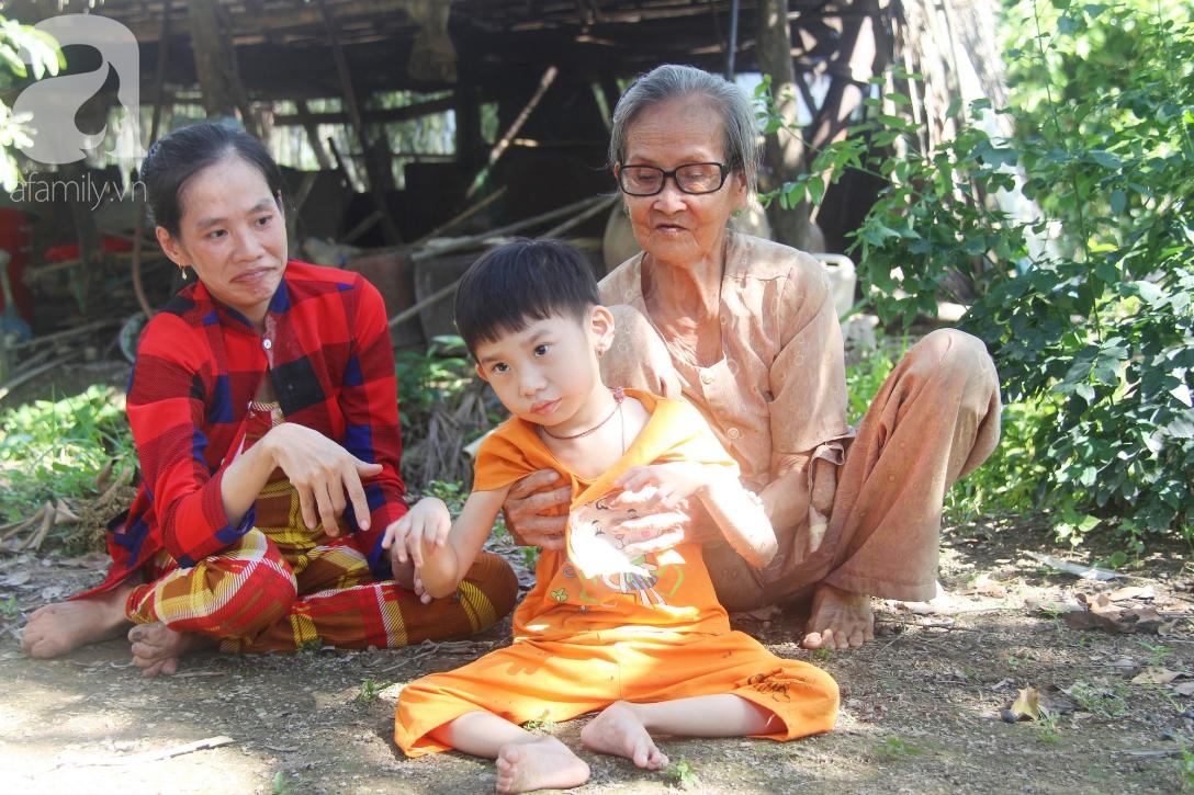 Bố bỏ từ trong bụng mẹ, bé gái 5 tuổi bại não sống cùng người mẹ tật nguyền cầu xin một lần được chữa bệnh - Ảnh 13.
