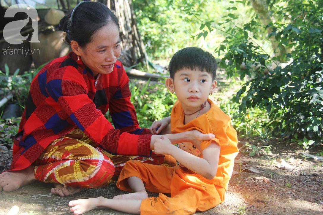 Bố bỏ từ trong bụng mẹ, bé gái 5 tuổi bại não sống cùng người mẹ tật nguyền cầu xin một lần được chữa bệnh - Ảnh 17.