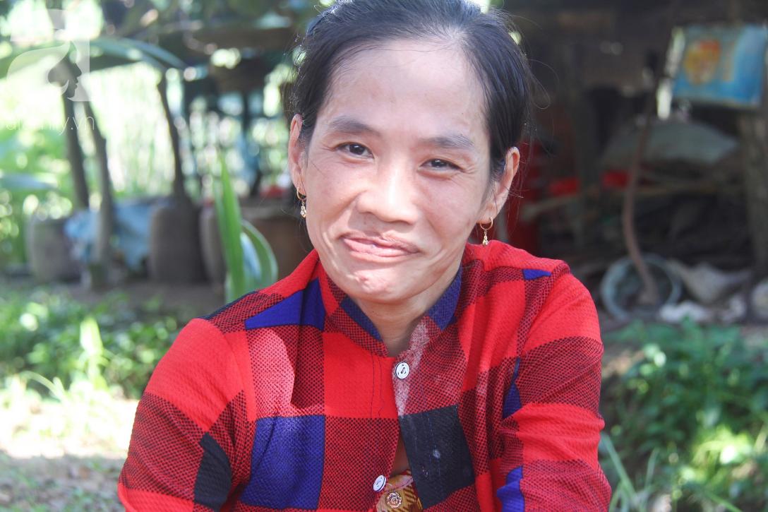Bố bỏ từ trong bụng mẹ, bé gái 5 tuổi bại não sống cùng người mẹ tật nguyền cầu xin một lần được chữa bệnh - Ảnh 16.