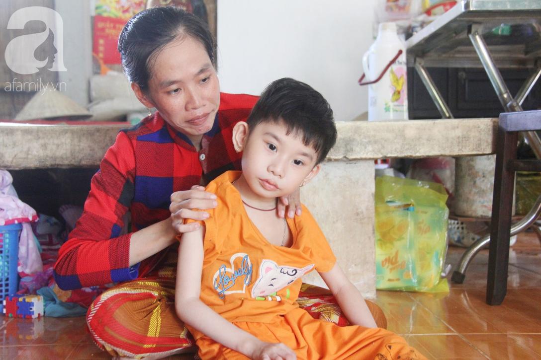 Bố bỏ từ trong bụng mẹ, bé gái 5 tuổi bại não sống cùng người mẹ tật nguyền cầu xin một lần được chữa bệnh - Ảnh 6.