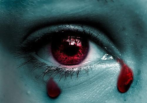 Giọt lệ máu - dấu hiệu bệnh cực hiếm và nguy hiểm - Ảnh 1.
