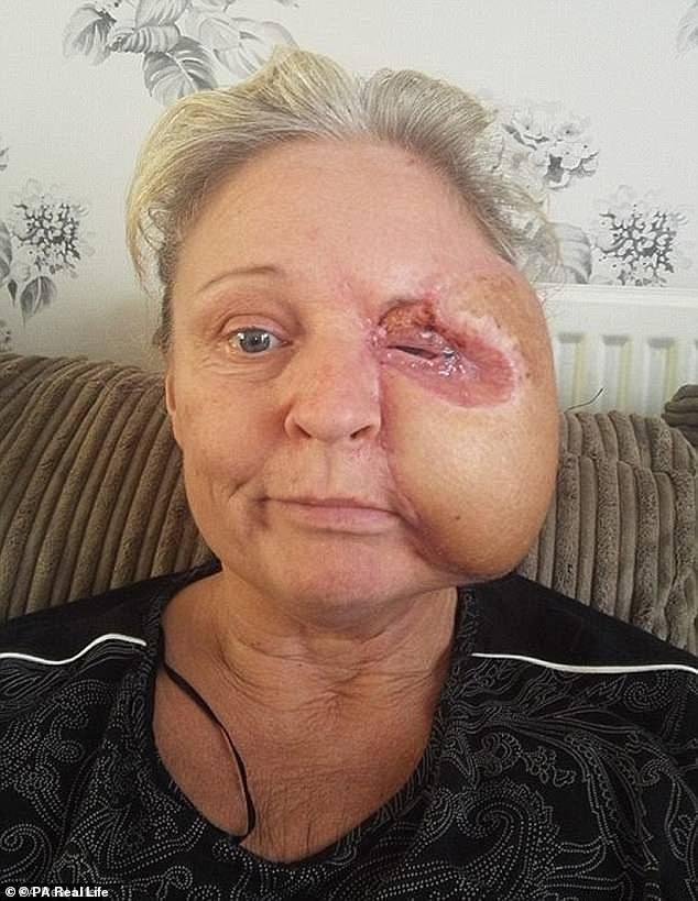Người phụ nữ bị vi khuẩn ăn hết nửa khuôn mặt: Đừng chủ quan dù chỉ có một vết xước nhỏ! - Ảnh 2.