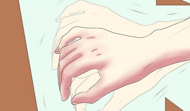 Cẩn thận với những triệu chứng cảnh báo mạch máu của bạn đang bị tắc nghẽn, cần xử lý ngay để tránh tử vong đột ngột - Ảnh 3.
