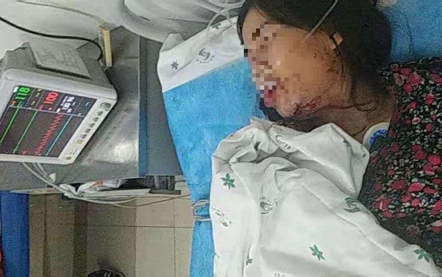Sự thật về cô dâu Vĩnh Long nghi bị chồng Trung Quốc đánh đập chảy máu, nhập viện cấp cứu