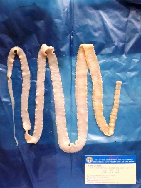 Kinh hãi: Ăn thịt lợn gạo có thể nhiễm sán dây trưởng thành lên đến 12m trong cơ thể - Ảnh 2.