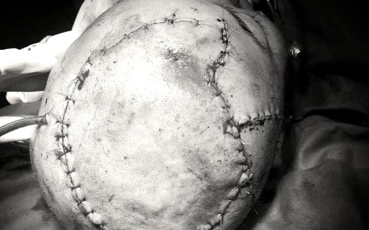 Bệnh nhân nữ bị lột gần như toàn bộ da đầu được nối vi phẫu thành công