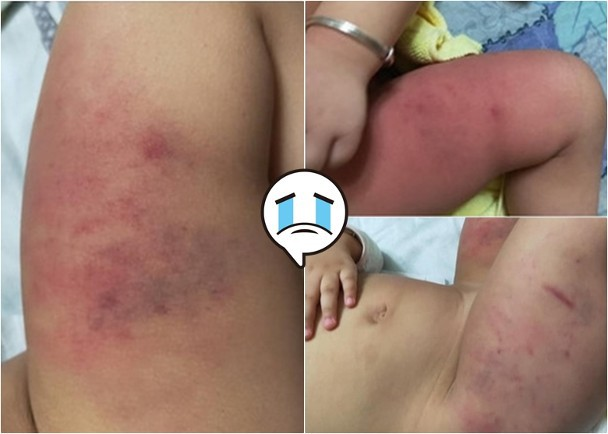 Đài Loan: Dân mạng sục sôi truy tìm danh tính bé gái 1 tuổi nghi bị bố bạo hành đến bầm tím cơ thể - Ảnh 2.