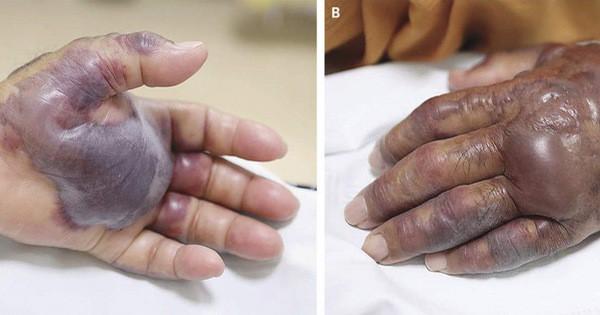 Ăn hàu sống, một người đàn ông phải cắt cụt cả bàn tay - Ảnh 1.