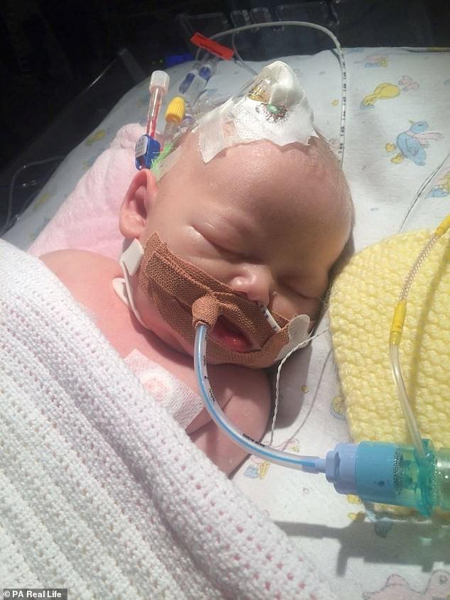 Lại thêm 1 bà mẹ đau đớn mất con mới 14 ngày tuổi vì nụ hôn của người lớn - Ảnh 3.