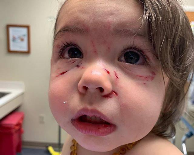 Bé gái bị chó cắn và cào liên tiếp vào mặt chỉ trong vài giây mẹ không để mắt tới con - Ảnh 1.