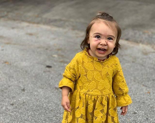 Bé gái bị chó cắn và cào liên tiếp vào mặt chỉ trong vài giây mẹ không để mắt tới con - Ảnh 4.