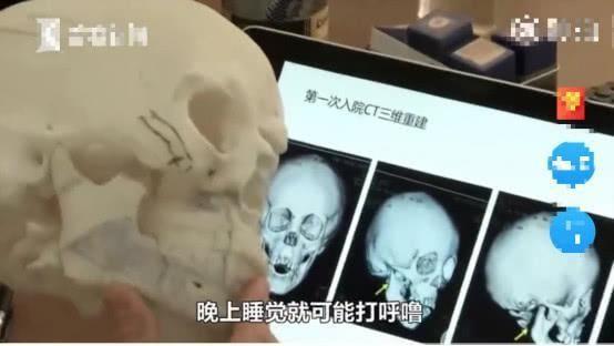 Bé trai 5 tuổi không thể ngậm được miệng, bị chẩn đoán mắc dị tật xương hàm vì thói quen của trẻ mà hầu hết - Ảnh 6.
