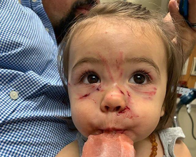 Bé gái bị chó cắn và cào liên tiếp vào mặt chỉ trong vài giây mẹ không để mắt tới con - Ảnh 3.