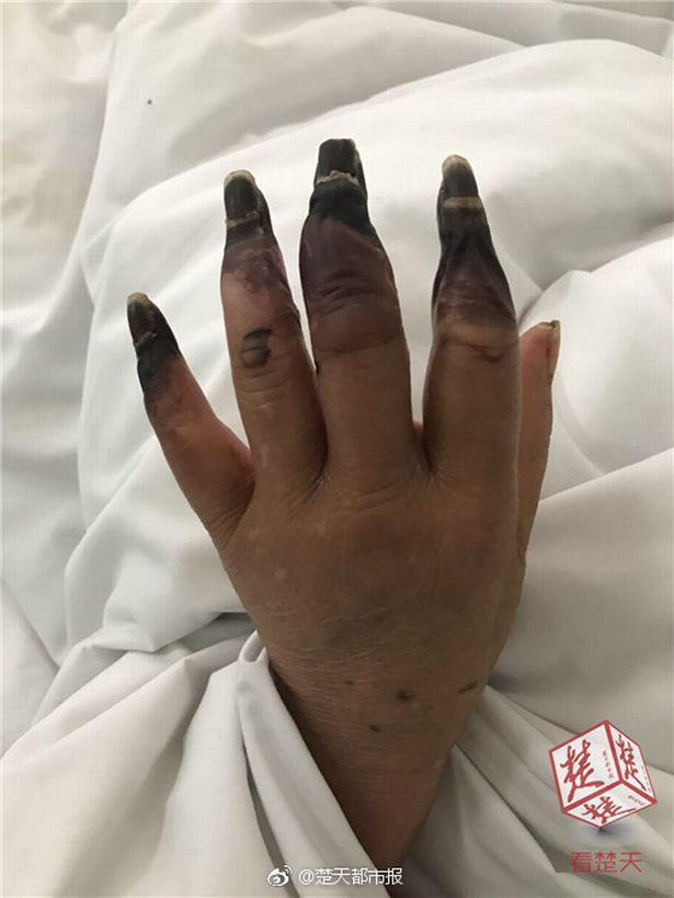 Dọn nhà, người phụ nữ bị hoại tử 8 ngón tay đen sì: Triệu chứng bất thường mọi người phải hết sức cảnh giác - Ảnh 3.