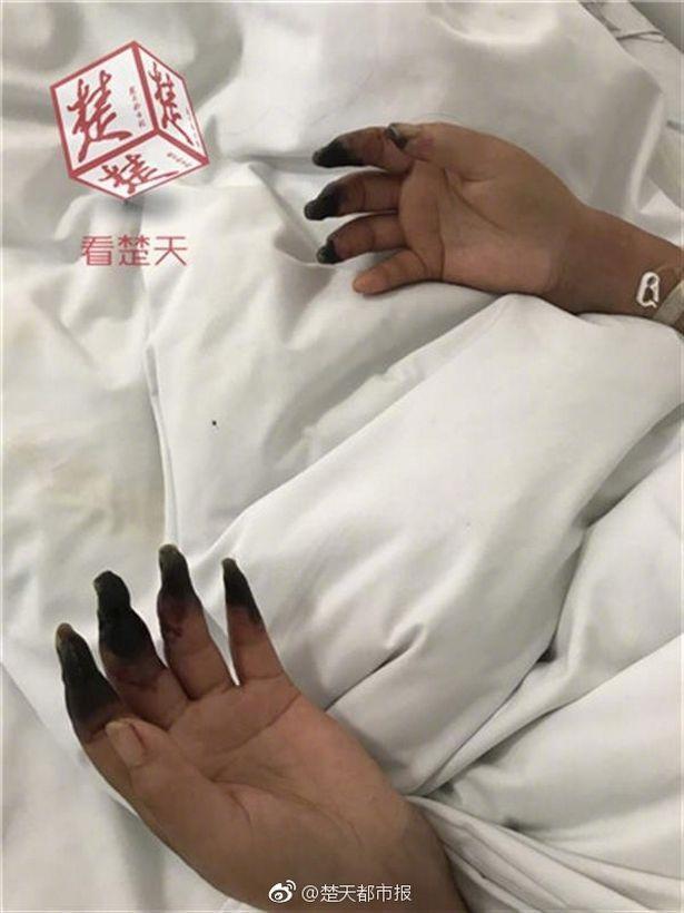 Dọn nhà, người phụ nữ bị hoại tử 8 ngón tay đen sì: Triệu chứng bất thường mọi người phải hết sức cảnh giác - Ảnh 1.