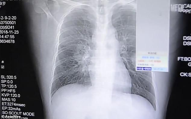 Người đàn ông bị nhiễm trùng phổi nặng vì ngày nào cũng đưa tất đã đi lên ngửi: Tại sao việc này nguy hiểm vậy? - Ảnh 2.