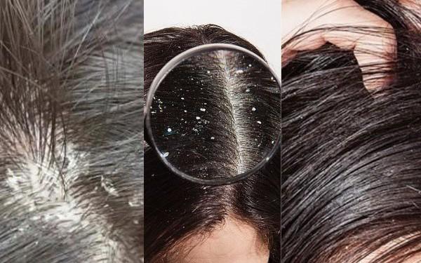 Làm thế nào khi bị nấm da đầu