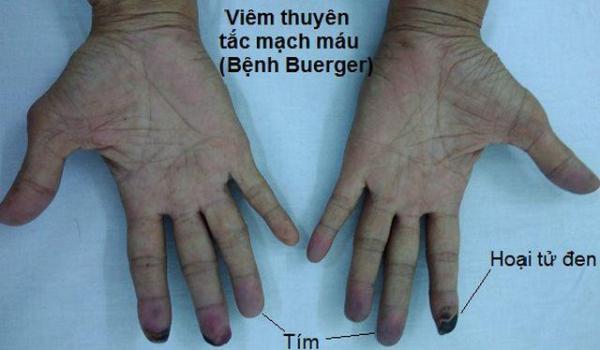 Ngón tay và ngón chân của người ông này bỗng chuyển sang màu đen sì - dấu hiệu cảnh báo bệnh nguy hiểm - Ảnh 4.