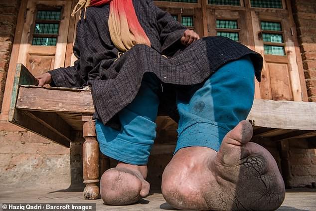 Bàn chân sưng to gấp 3 lần vì nhiễm giun sán khiến cô gái 21 tuổi có khả năng mất cả tương lai - Ảnh 3.