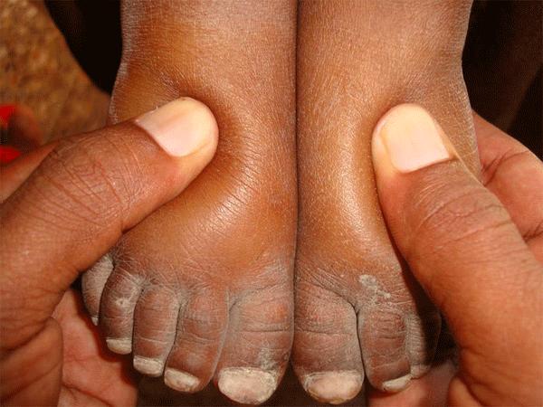 Bàn chân sưng to gấp 3 lần vì nhiễm giun sán khiến cô gái 21 tuổi có khả năng mất cả tương lai - Ảnh 5.