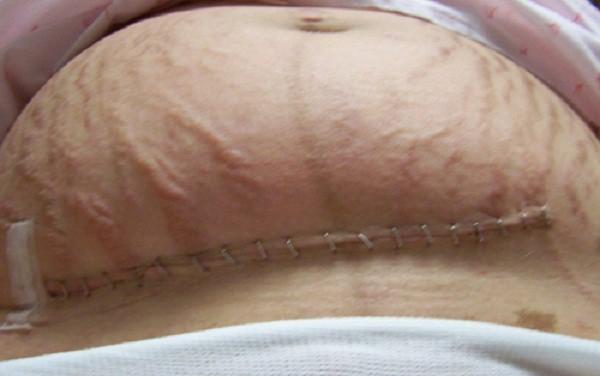 Bị nhiễm trùng sau sinh mổ, bác sĩ phải mổ phanh bụng sản phụ lần nữa mà không kịp gây mê - Ảnh 6.
