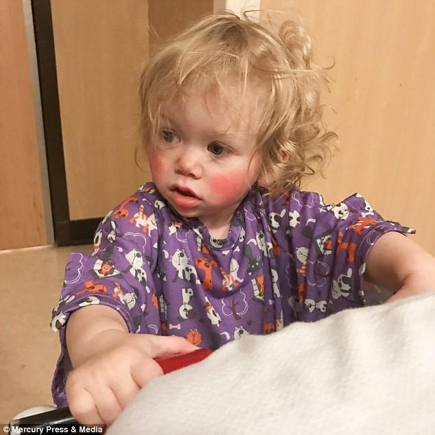 Bé gái bị mắc bệnh dị ứng nước hiếm gặp trên thế giới, ngay cả nước mắt cũng gây đau đớn - Ảnh 4.