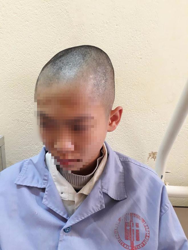 Quảng Ninh: Nam sinh lớp 9 nhập viện, nghi bị thầy giáo tát khiến tụ máu ở đầu - Ảnh 6.