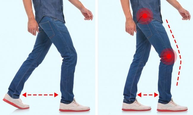 7 kiểu đi bộ cảnh báo bạn đang bị bệnh - Ảnh 1.
