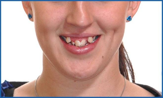Nhìn răng là biết tương lai sướng hay khổ, đều tăm tắp đã tốt mà hơi khểnh 1 chút còn tốt hơn - Ảnh 4.