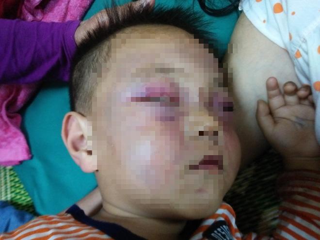 Xót cảnh bé trai 2 tuổi đẻ ra không biết mặt cha, đến khi mẹ lấy chồng thì bị cha dượng đánh đập phải nhập viện cấp cứu - Ảnh 6.