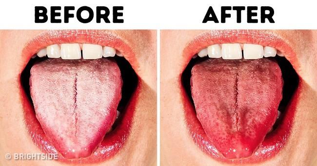 Nhận biết bệnh qua từng vùng lưỡi màu trắng và 5 cách đơn giản giúp lưỡi khỏe mạnh, hết vi khuẩn - Ảnh 2.